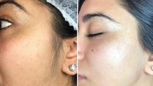 before and after dermaplaning treatment benefits